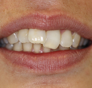 before-braces
