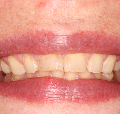 damaged-teeth-before-treatment