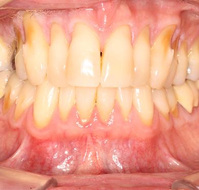 gum-coloured-repair-before