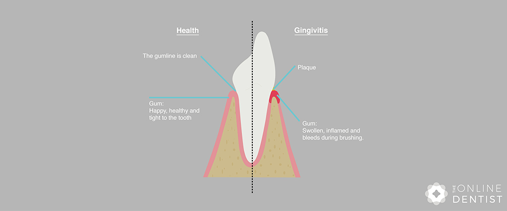 healthy-gums-vs-gingivitis