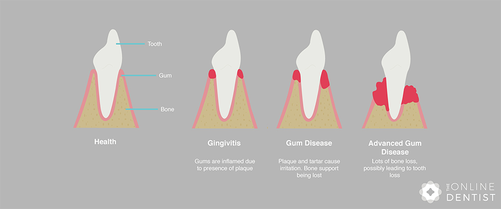 stages-of-gum-disease