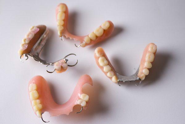 denture-featured
