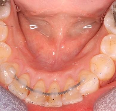 Orthodontic treatment (Braces) - The Online Dentist