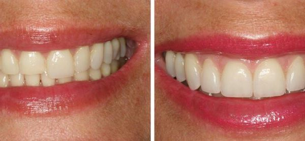 Before and after Veneers added