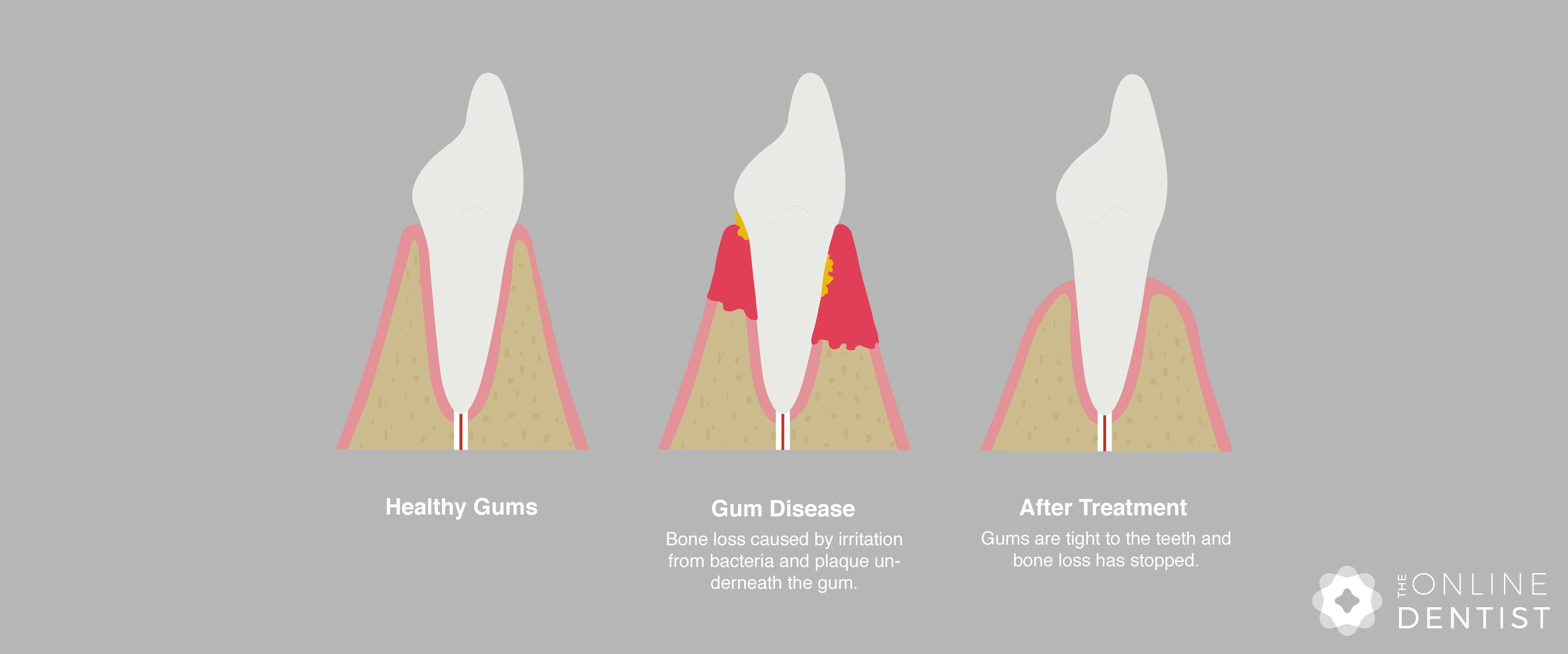 Aggressive Gum Disease Article