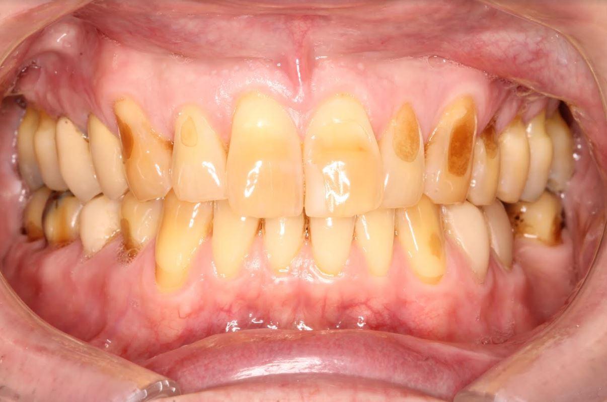 Worn Teeth Before Treatment