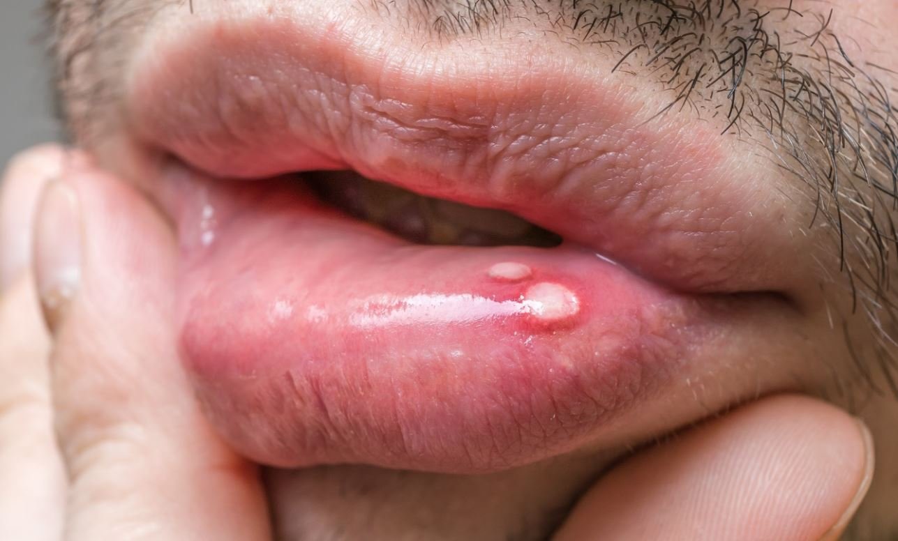 Mouth ulcer - The Online Dentist