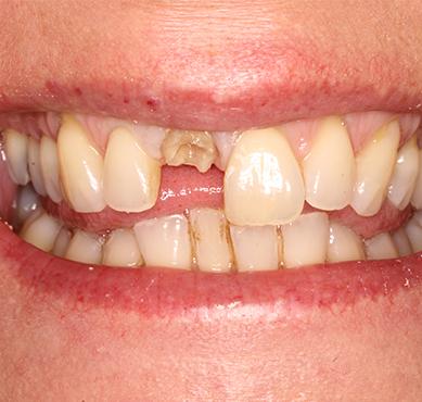 Best option for broken front tooth