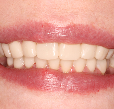 damaged-teeth-after-treatment