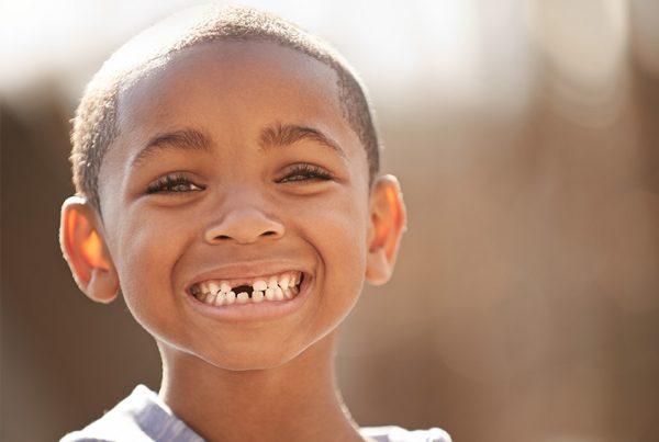 dental-trauma-baby-image-1