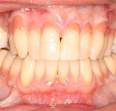 gum-coloured-repair-after