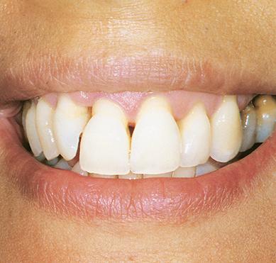 gum-veneer-before