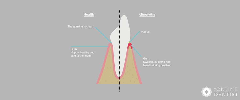 healthy-gums-vs-gingivitis