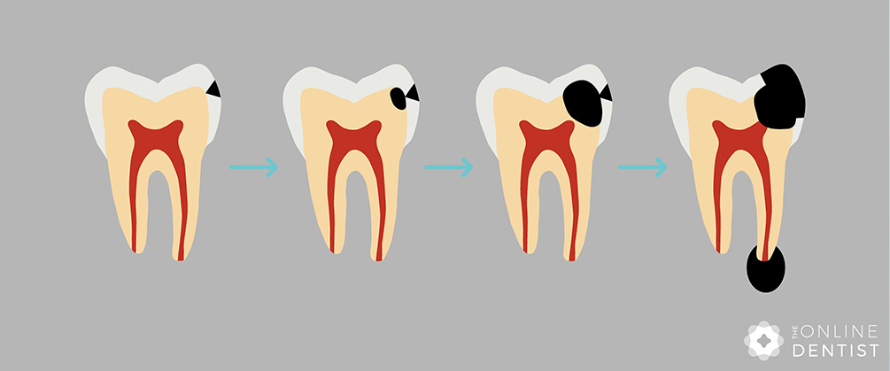 progression-of-tooth-decay