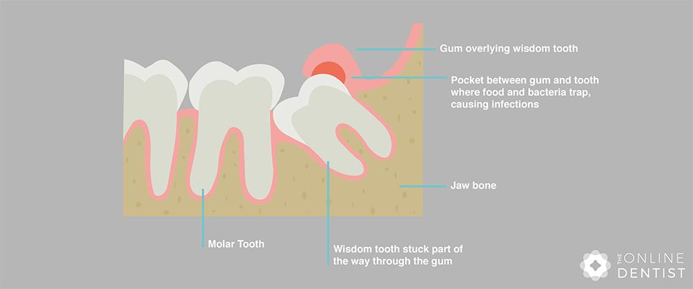 wisdom-tooth-stuck-under-gum