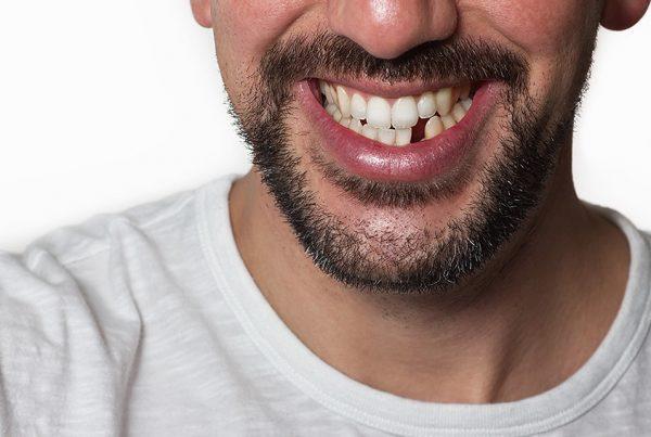 missing-teeth-image