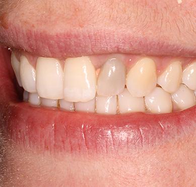 single-white-tooth