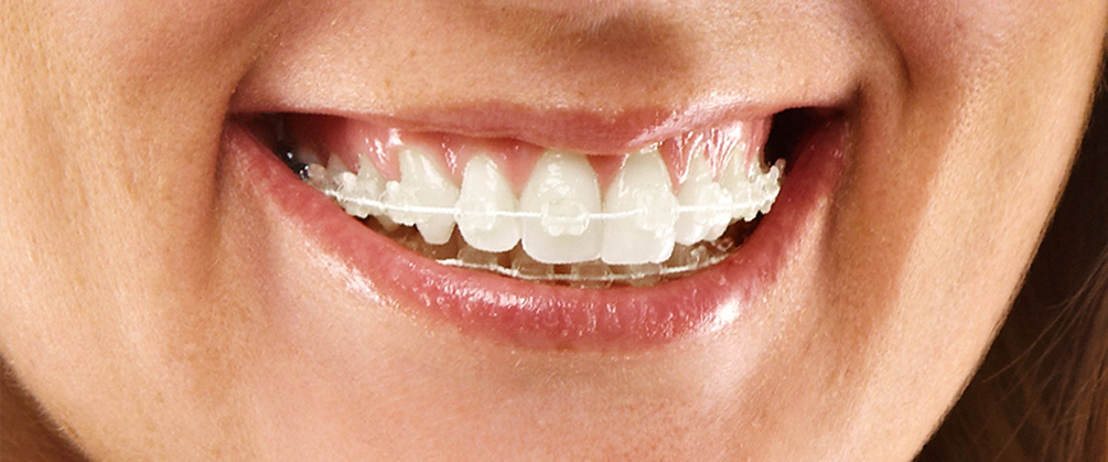 white-braces