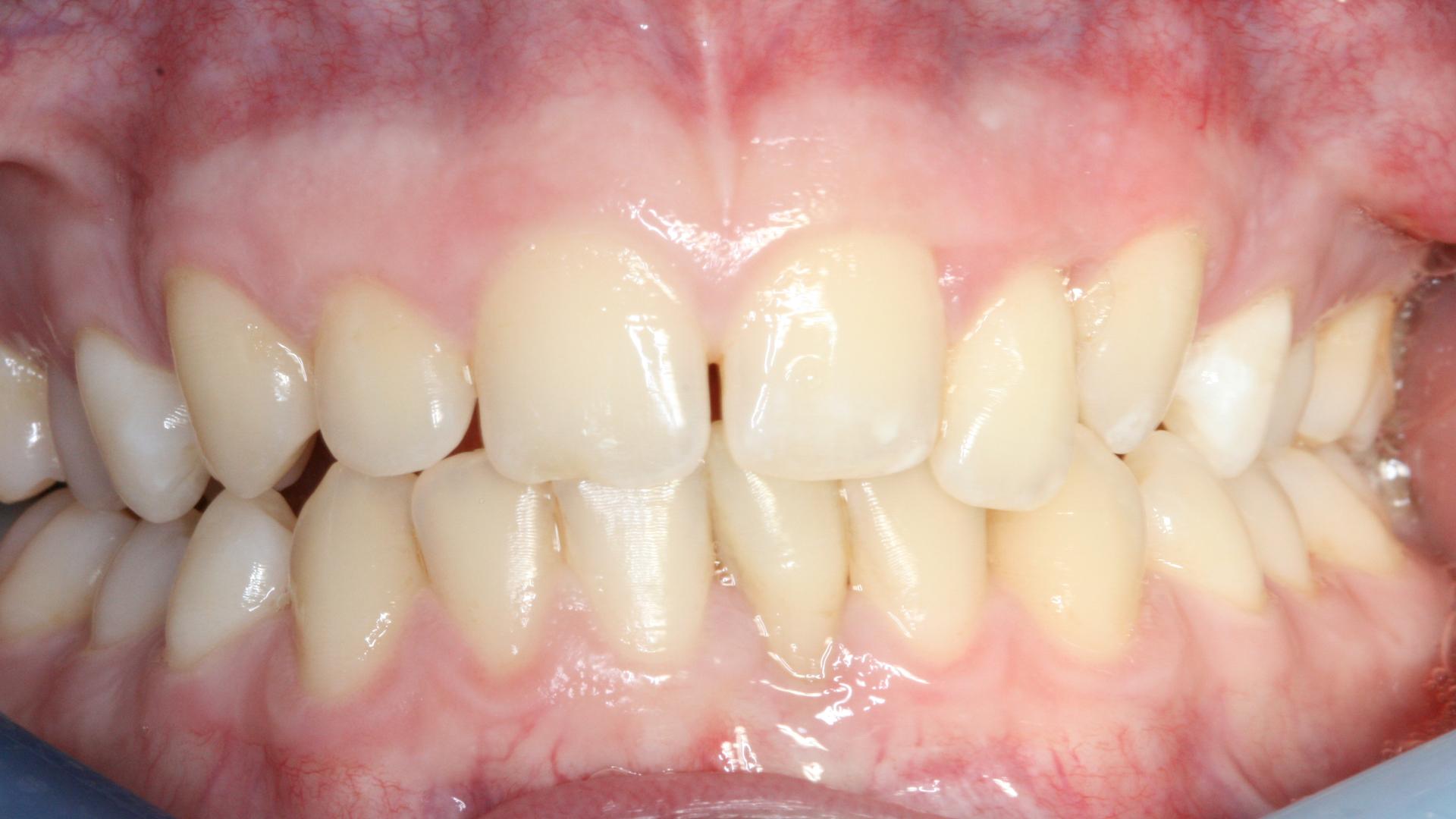 Aggressive Gum Disease
