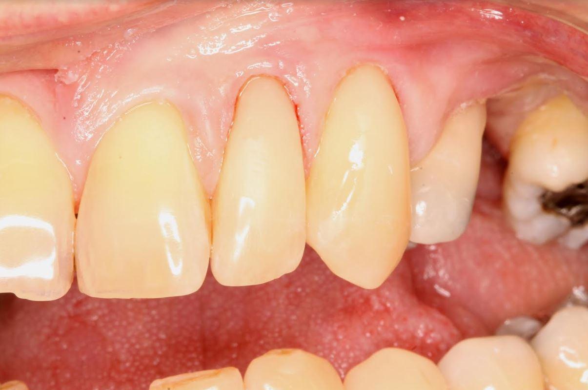 Worn Rotten Teeth