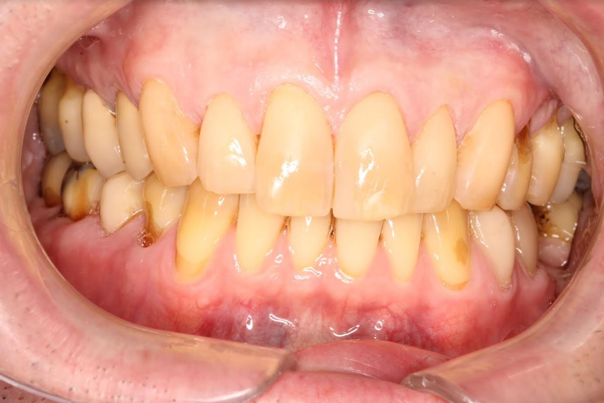 Worn Teeth After Treatment