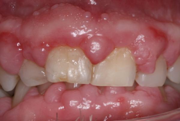 Gummy Smile - The Online Dentist