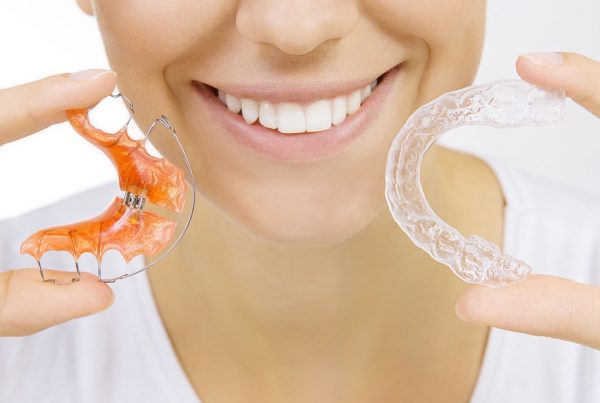 Retainers must be worn after braces treatment