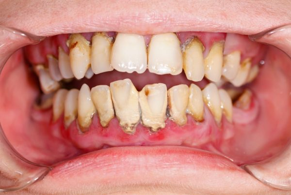 Gum disease frequently asked questions